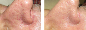 Broken Capillaries Before & After