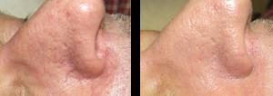 Broken Capillaries Before & After