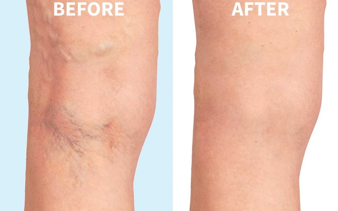 What are spider veins, and how to treat them?